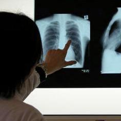 אילוסטרציה - צילום רנטגן